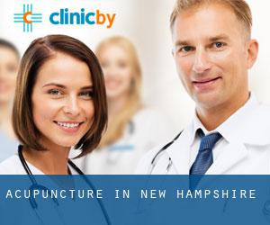 Acupuncture in New Hampshire